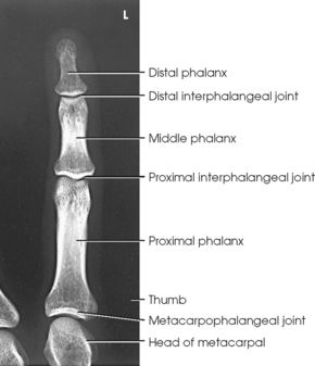 Image Result For Numbering Of Digits Radiology