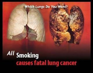 Harmful Effects of Smoking -- NOT WORTH IT