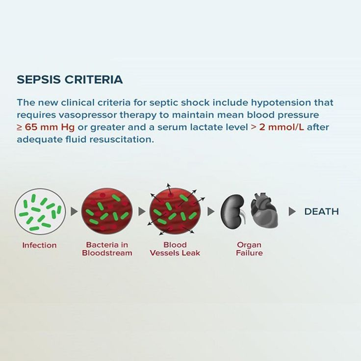 "527 Likes, 4 Comments - Medscape (@medscape) on Instagram: ""Sepsis Criteria: The 2nd Most Popular Search Term on Medscape in 2016⠀ ⠀ For the first time in 15…"""