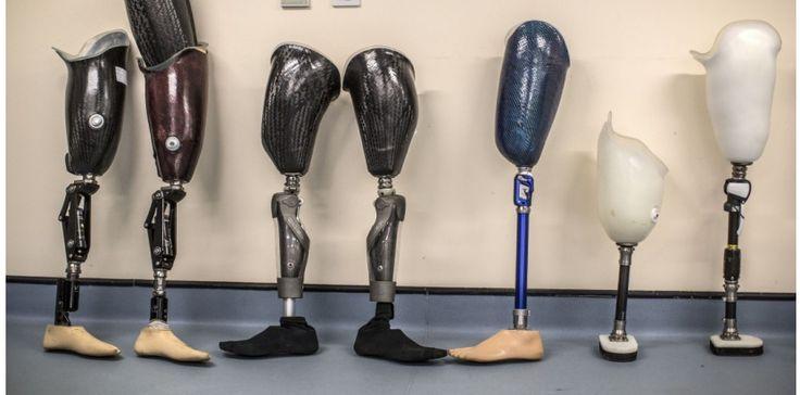 Que deviennent les prothèses après la mort des patients?
