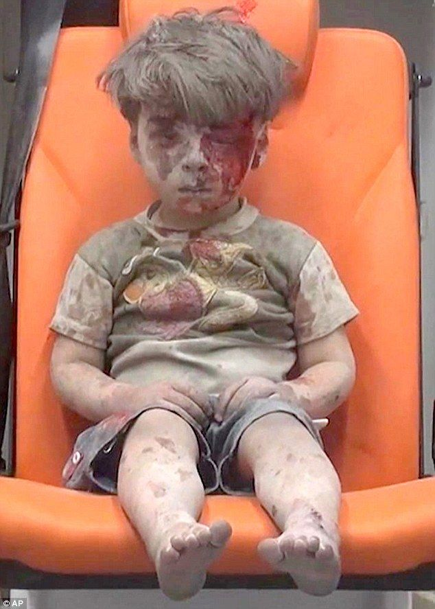 Don't forget the Syrians:  Footage shows him wiping his dusty forehead with his hand, before realising he is bleeding, and he rests his hands back in his lap.