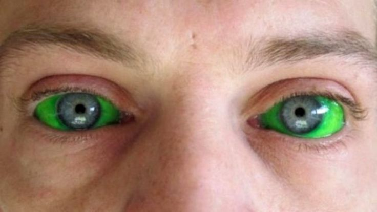 Tattooing of the sclera is growing in popularity across the globe, but doctors are worried about the health risks. This links to a great article from the BBC about this growing phenomenon.