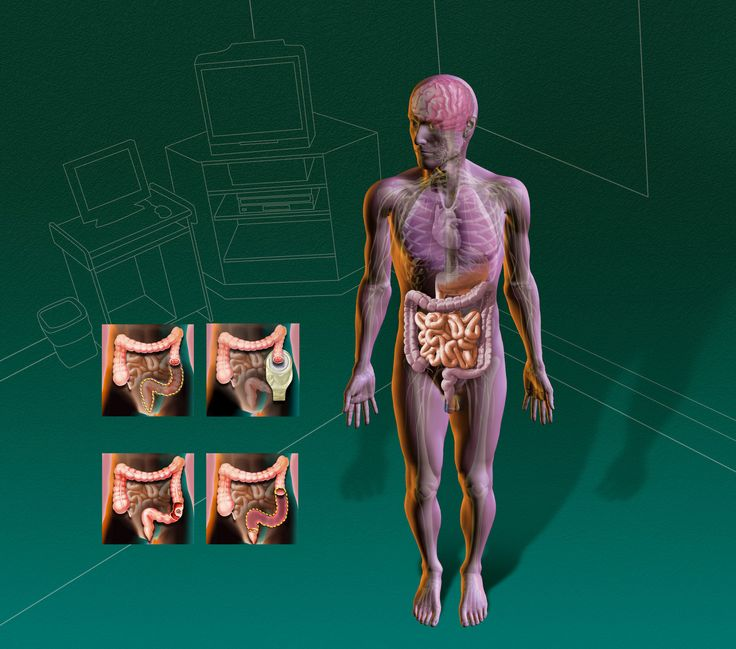 Marco Vaglieri • Surgery for colon cancer, 2003 (in collaboration with M2 studio, Milan)
