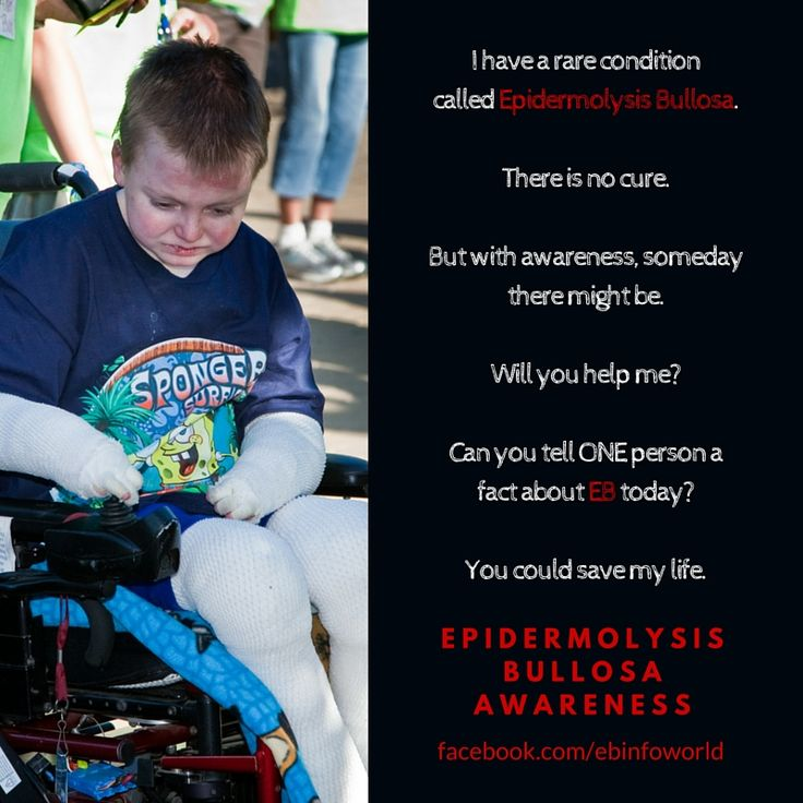 #ebkids #cure4eb #ebawareness ebkids.org debra.org ebresearch.org This is Nicky, he has the Recessive Dystrophic form of Epidermolysis Bullosa (RDEB). Like his page here --> https://www.facebook.com/NickyLivingWithEB/ I have a rare condition called Epidermolysis Bullosa. There is no cure. But with awareness, someday there might be. Will you help me? Can you tell ONE person a fact about EB today? You could save my life. Epidermolysis Bullosa Awareness.