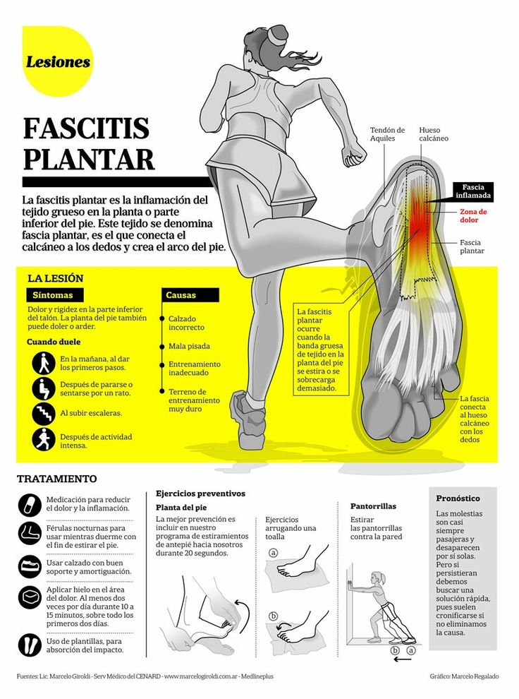 Exercises To Relieve Upper Back Pain Diagram