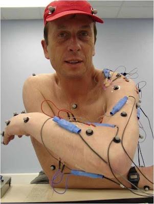 """Kevin Warwick Durante la década de 1990, el equipo de cirugía de Kevin Warwick le implantó un chip de silicio en su antebrazo, en un experimento conocido como Proyecto Cyborg. A través de este implante, el sistema nervioso de Warwick fue supervisado por un sistema informático. Según su sitio web, la interfaz de los nervios le permitió """"operar las puertas, luces, calentadores y otros equipos sin mover un dedo"""". En otras palabras, el futuro es ahora."""