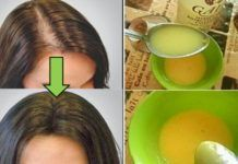 Zimní péče o vlasy: Díky tomuto léku budou vaše vlasy růst jako blázen