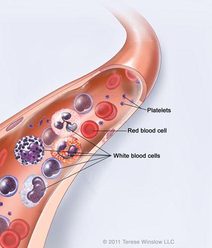 Acute Lymphoblastic Leukemia in Children: CureSearch