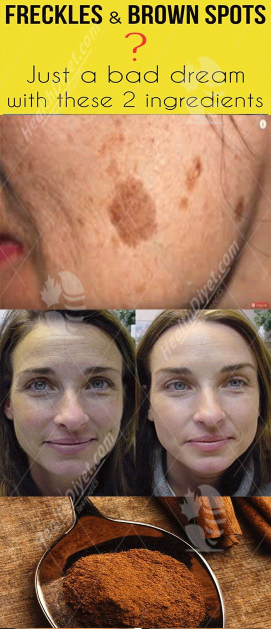 Skin physiological state happens once the body produces an excessive amount of animal pigment – which provides color to the hair, skin and eyes, inflicting the brown spots look. UV rays area unit the most cause brown spots and freckles which can be temporary or permanent. They area unit common o...