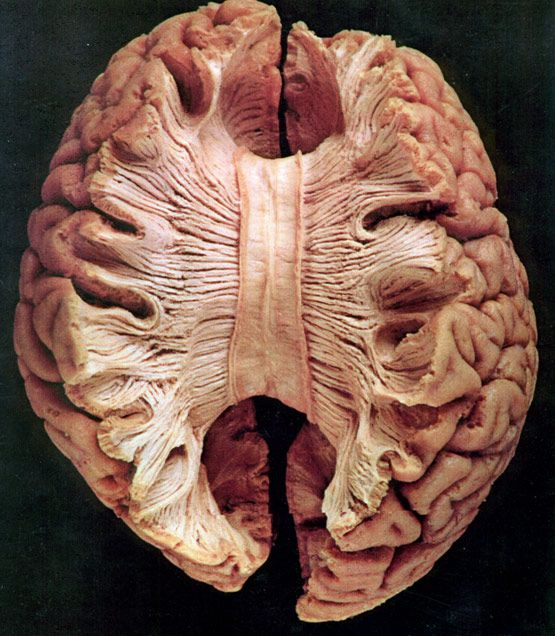 Corpus callosum- the large band of neural fibers connecting the two brain hemispheres and carrying messages between them