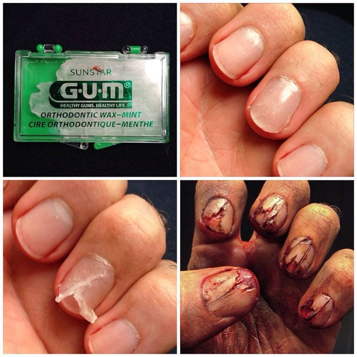 cracked nail using wax from the orthodontist #SFXmakeup