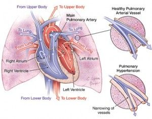 Pulmonary Hypertension - Breath of HopeBreath of Hope, Inc ...