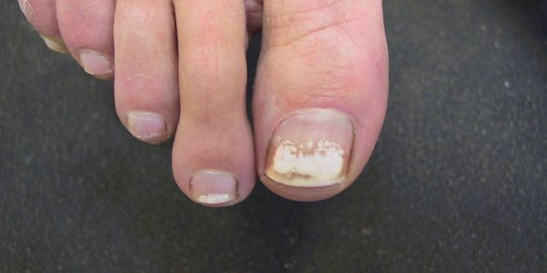 how to clear toe fungus