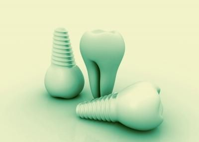 #Dental implant is the most effective and useful option for missing teeth. It requires a surgery that involves putting a replacement tooth, called a crown in the place of the original tooth. It gives you the exact appearance of the natural teeth and makes the whole #tooth replacement procedure more secure.