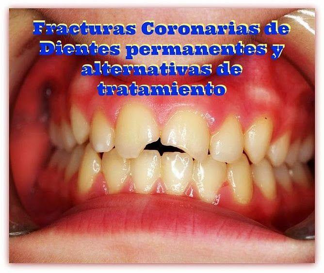 PDF: Fracturas Coronarias de Dientes permanentes y alternativas de tratamiento | Ovi Dental