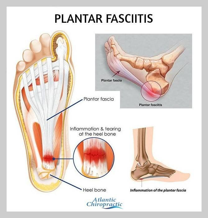 Exercise Bands Plantar Fasciitis: 1000+ Images About Plantar Fasciitis Treatment, Exercises