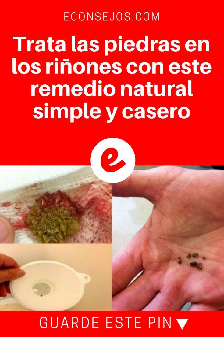 Piedras en los riñones | Trata las piedras en los riñones con este remedio natural simple y casero | TRATA LAS PIEDRAS EN LOS RIÑONES con este remedio natural que seguro tienes en casa.