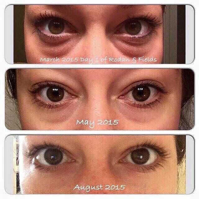 The best eye cream for bags dark circles and crows feet, hands down!!!  Try Rodan and Fields redefine multi functional eye cream..   #mommysurvival  jessicasalloum.myrandf.com