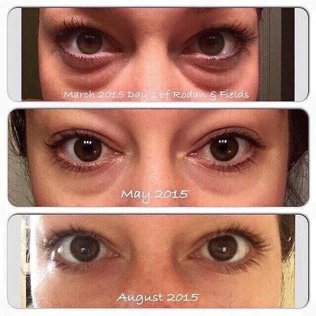 The best eye cream for bags dark circles and crows feet, hands down!!!  Try Rodan and Fields redefine multi functional eye cream..   #mommysurvival  jessicasalloum.myrandf.com