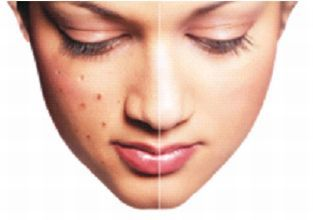 Ayurvedic Natural cure for Pimples or Acne - Ayurveda - Astrogle