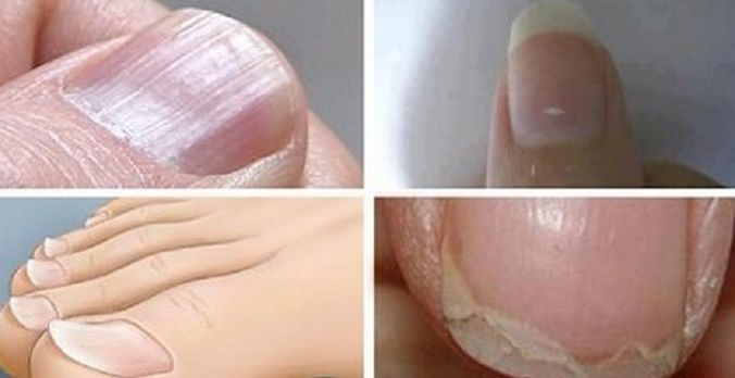 Nossas unhas podem dizer muita coisa em relação à nossa saúde e aparência.