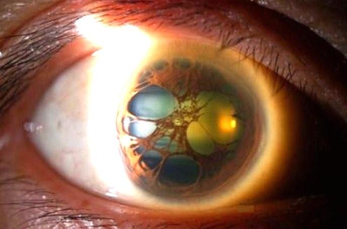 polycoria | Ojos Kaleidoscopicos | Pinterest | Zombies
