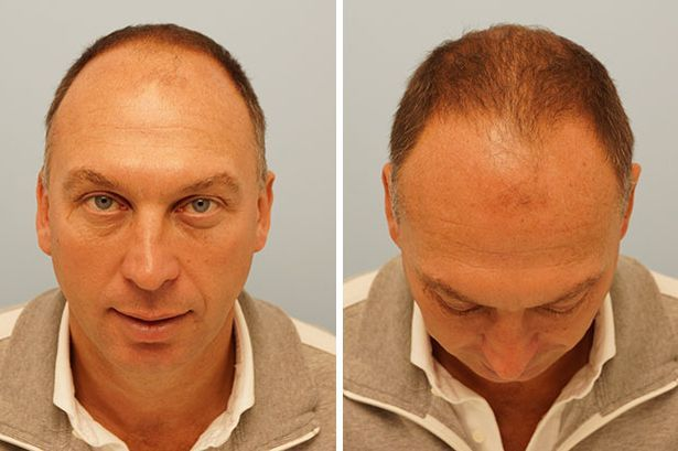 FUE and FUT Hair Restoration in Thailand with PRP Injections for the best results.