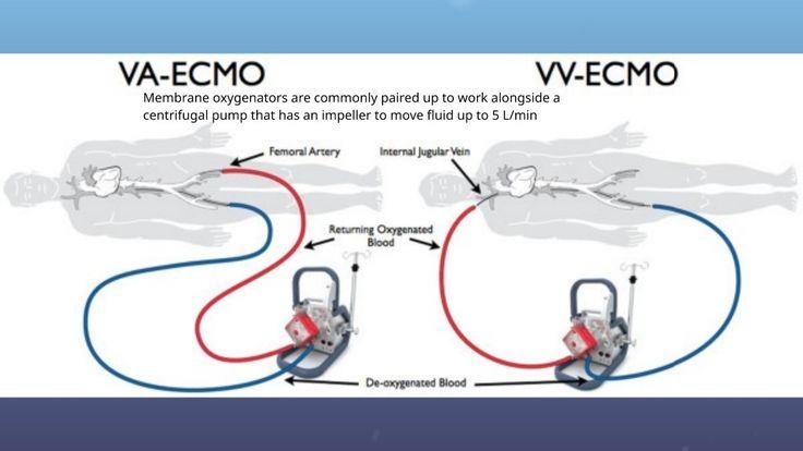 Extracorporeal Membrane Oxygenation (ECMO)