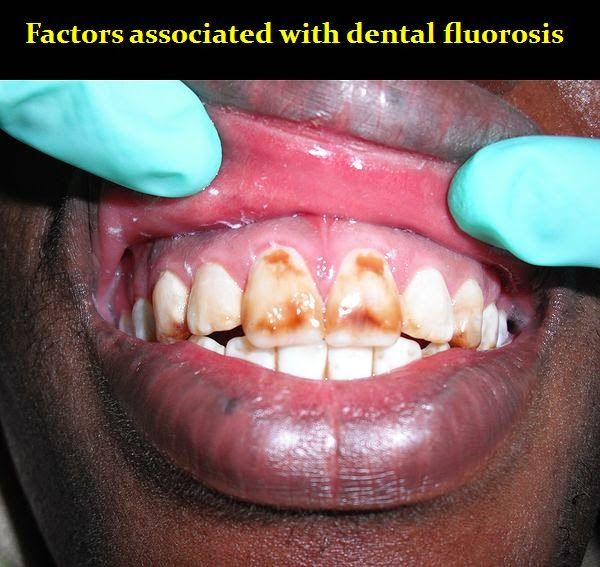 Factors associated with dental fluorosis | OVI Dental