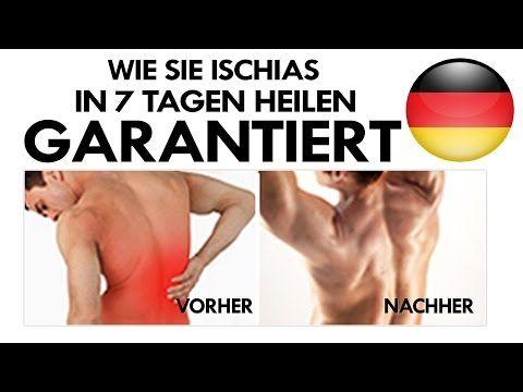 Ischiasschmerzen-Ischiasnerv übungen-Rezeptfreie Therapie bei Ischiasschmerzen-Ischias SOS Rezension