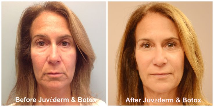 "60 year old Ginny's before and after a ""liquid facelift"" using Botox Cosmetic and Juvederm dermal filler. See VIDEO of the procedure at https://www.youtube.com/watch?v=y7URU9DPHLM"