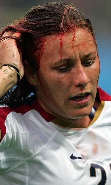 Abby Wambach runs off the field with a cut to the head in a match against North Korea in the Women's World Cup, Chengdu, China, Sept. 11, 2007. (Ronald Martinez/Getty Images)
