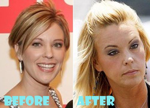 Kate Gosselin Plastic Surgery Before and After Pictures