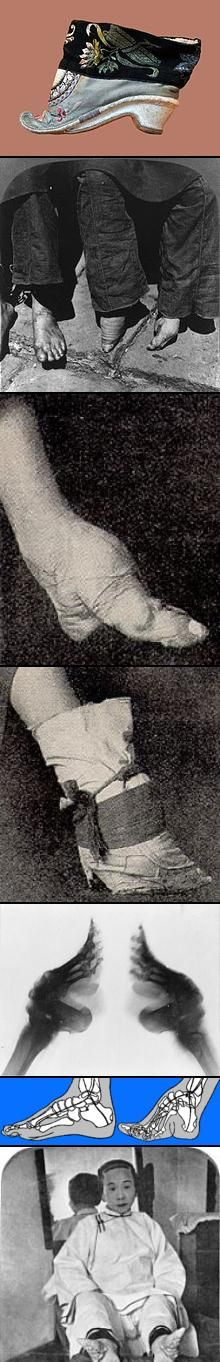 Foot Binding began in the early T'ang dynasty & became popular because men thought it attractive. A young girl soaks her feet in warm water or animal blood & herbs. Toe nails are clipped & feet massaged. Then every toe but the big toe is broken & the foot is wrapped with cloth. Every few days, it is rewrapped & put into smaller shoes until it is only 4 in long. Foot binding died out in the early 20th century. Some elderly Chinese women survive today with disabilities related to bound feet…