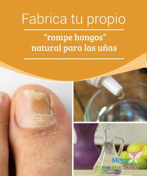 """Fabrica tu propio """"rompe hongos"""" natural para las uñas Afecta tanto las manos…"""
