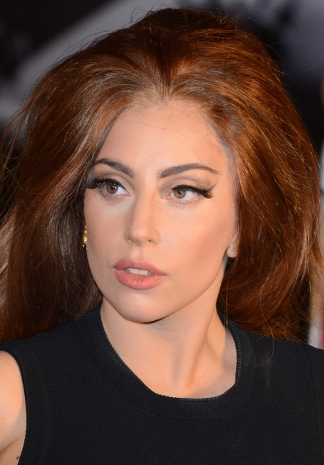 "Lady Gaga Surgery a Success, Singer Excited to Move Past ""Bump in the Road"""