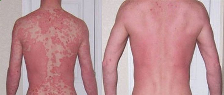 Psoriasis Revolution - psoriasis-treatment REAL PEOPLE. REAL RESULTS 160,000+ Psoriasis Free Customers