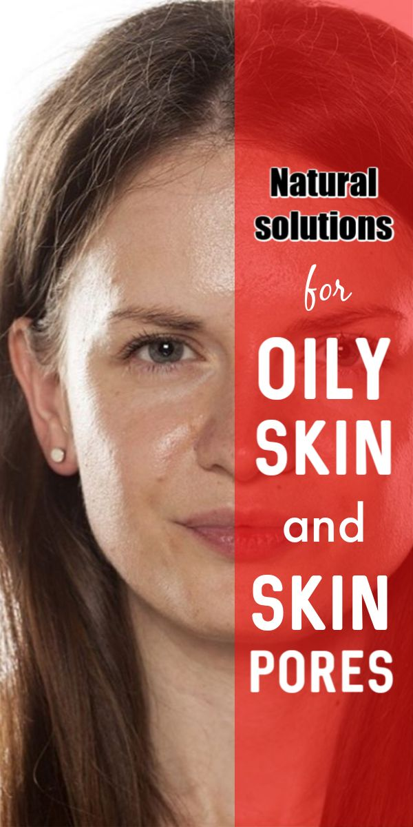 Natural solutions for oily skin and large pores