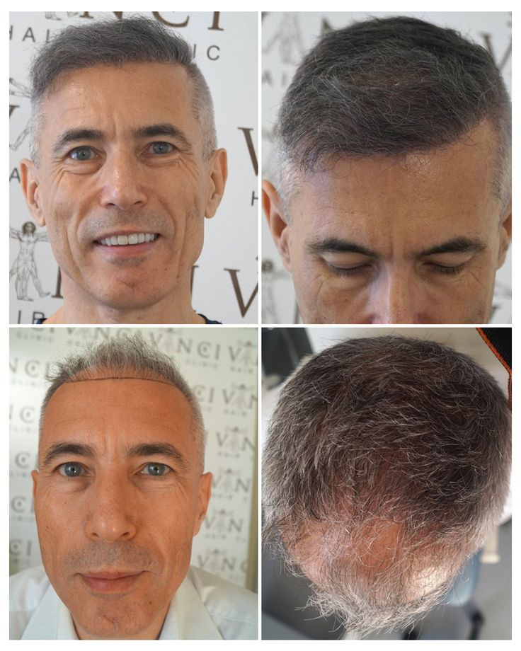 """Neil had FUE hair transplants at Vinci Hair Clinic London. He said """"The hair transplant solution from Vinci was more than I could have ever hoped for. After only six months, I now have a mop of thick hair, where once there were embarrassing gaps. The Vinci team were fantastic and I cannot praise them highly enough."""""""
