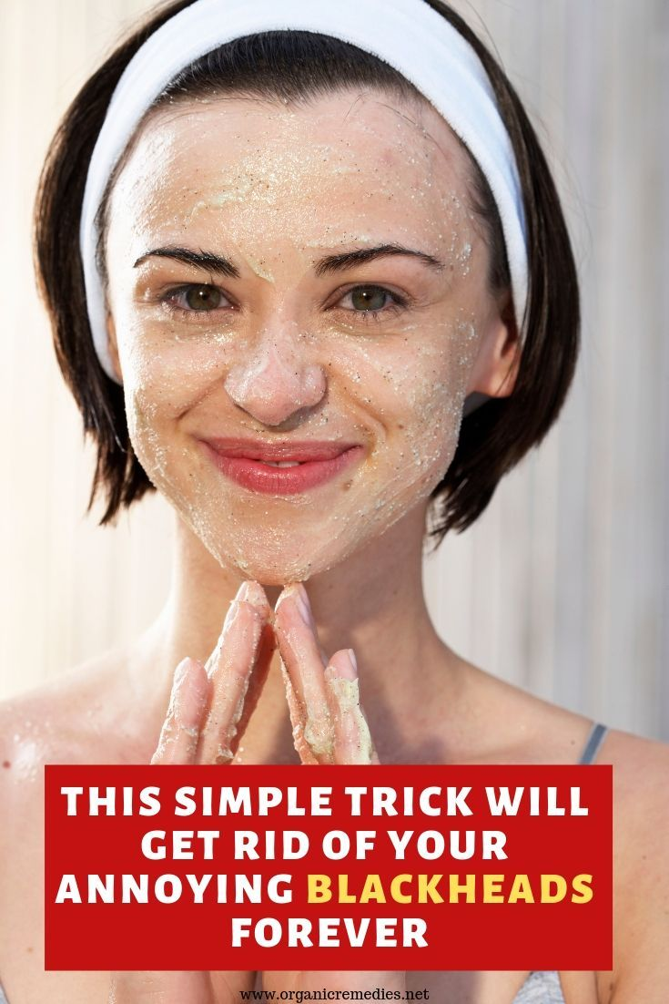 This Simple Trick Will Get Rid Of Your Gross And Annoying Blackheads Forever