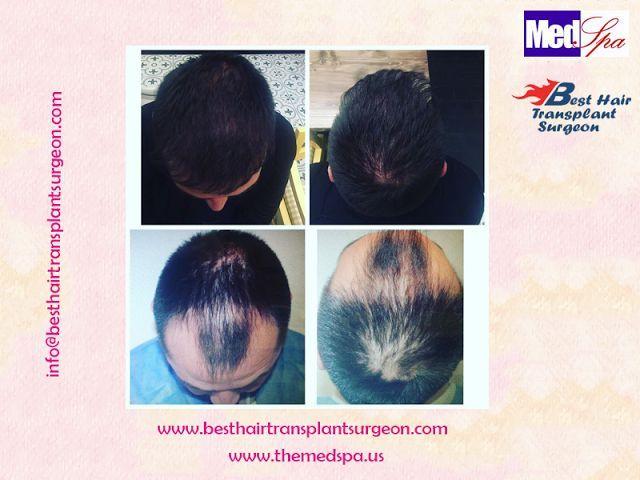 Best Hair Transplant Surgeon Delhi India: FUE Hair Transplant Surgery at MedSpa