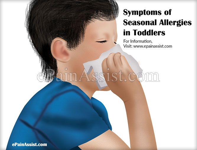 Symptoms of Seasonal Allergies in Toddlers