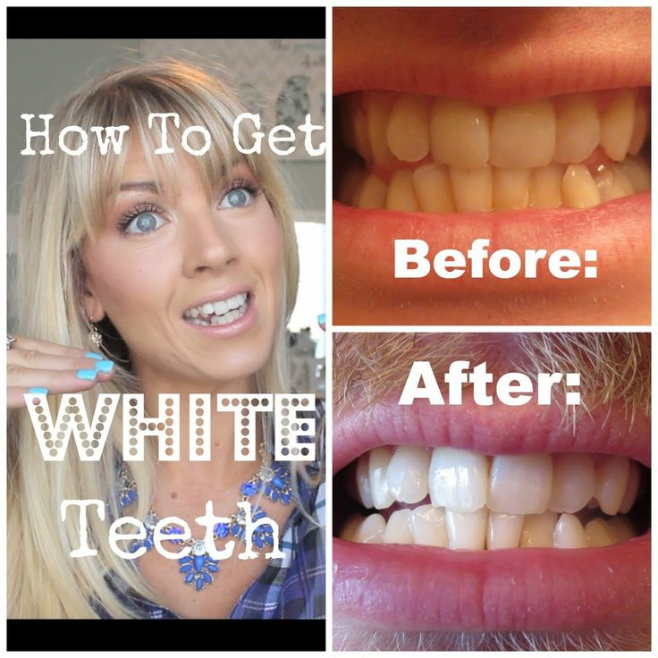 how to get whiter teeth at home chemist