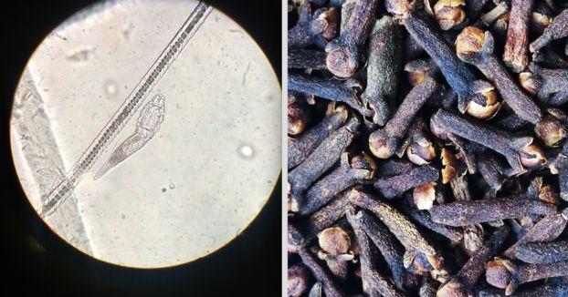 Man glaubt es nicht, aber 95% der Menschen tragen Parasiten in sich.
