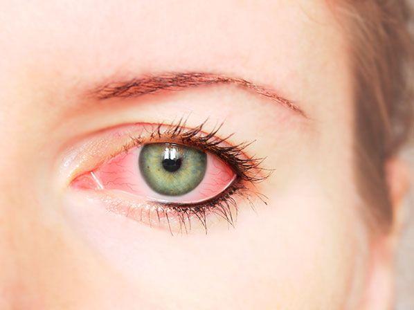El enrojecimiento en los #ojos puede ser causado por #conjuntivitis viral o bacteriana. Aprende a distinguirla y tratarla,