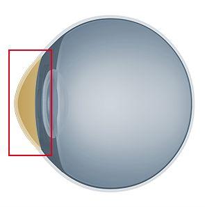 La córnea es una fina membrana transparente que cierra el globo ocular, por delante del iris y la pupila. Cumple múltiples funciones: como ventana transparente del ojo deja pasar las imágenes y actúa como una potente lente para enfocarlas sobre la retina.