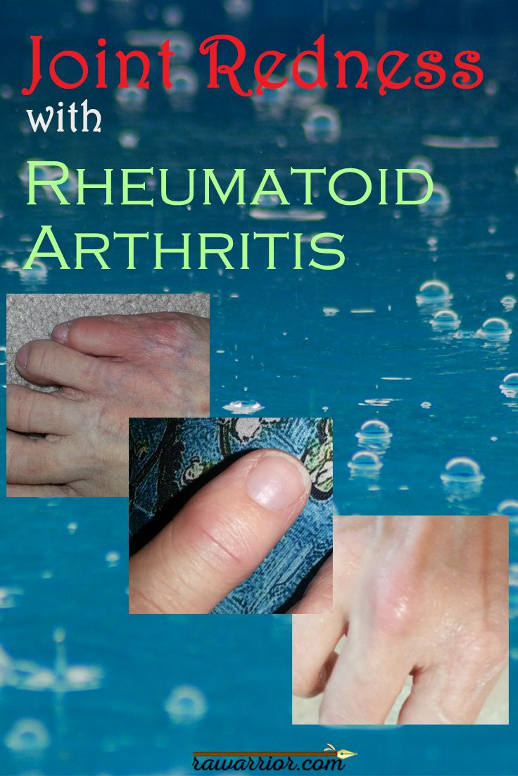 an experience of a survivor of rheumatoid arthritis Rheumatoid arthritis is a form of arthritis that can cause pain,  some of the  experiences people with rheumatoid arthritis must endure regularly.