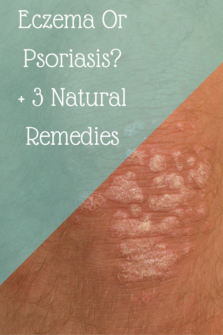 Is that weird rashy thing acne? Or is that eczema or psoriasis on your skin?…