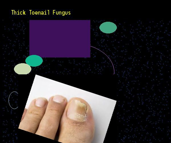 Thick toenail fungus - Nail Fungus Remedy. You have nothing to lose! Visit Site Now