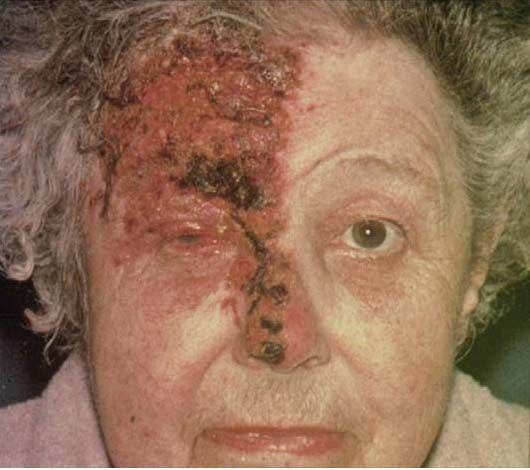 HERPES ZOSTER OPHTHALMICUS Def: latent varicella virus of trigeminal ganglion (V1) SSx: pain, headache, photophobia, vesicular rash Hutchinson's sign: lesions on tip of nose indicates ocular involvement. Tx: refer, antivirals. Prevention: Zostavax for pts > 50